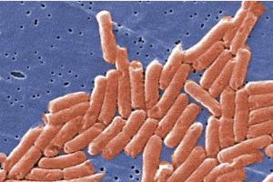 Вспышка сальмонеллеза привела к смертельному случаю. На фото вирус под микроскопом