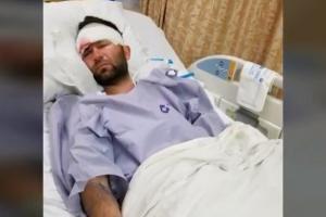 Преступник с молотком напал на мужчину и проломил ему череп. На фотографии пострадавший в больнице